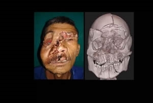 Maxillofacial Injuries - George Deeb