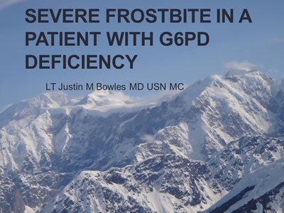 G6PD Deficiency Case - Justin Bowles